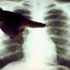 Egészségház utcai szakrendelő - Tüdőszűrő